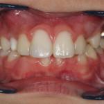 Odontología restauradora y traumatología